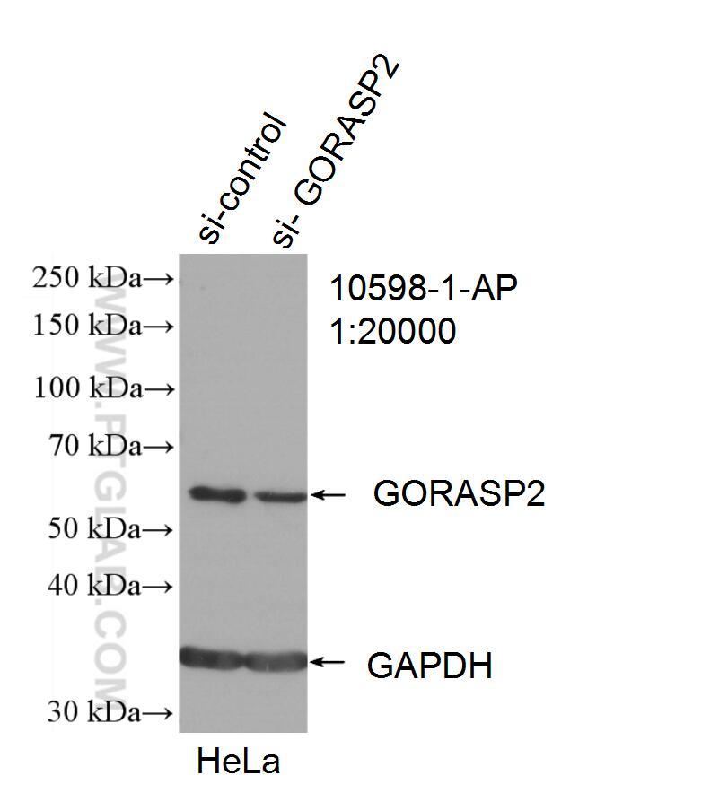 GORASP2 Antibody in Western Blot (WB)