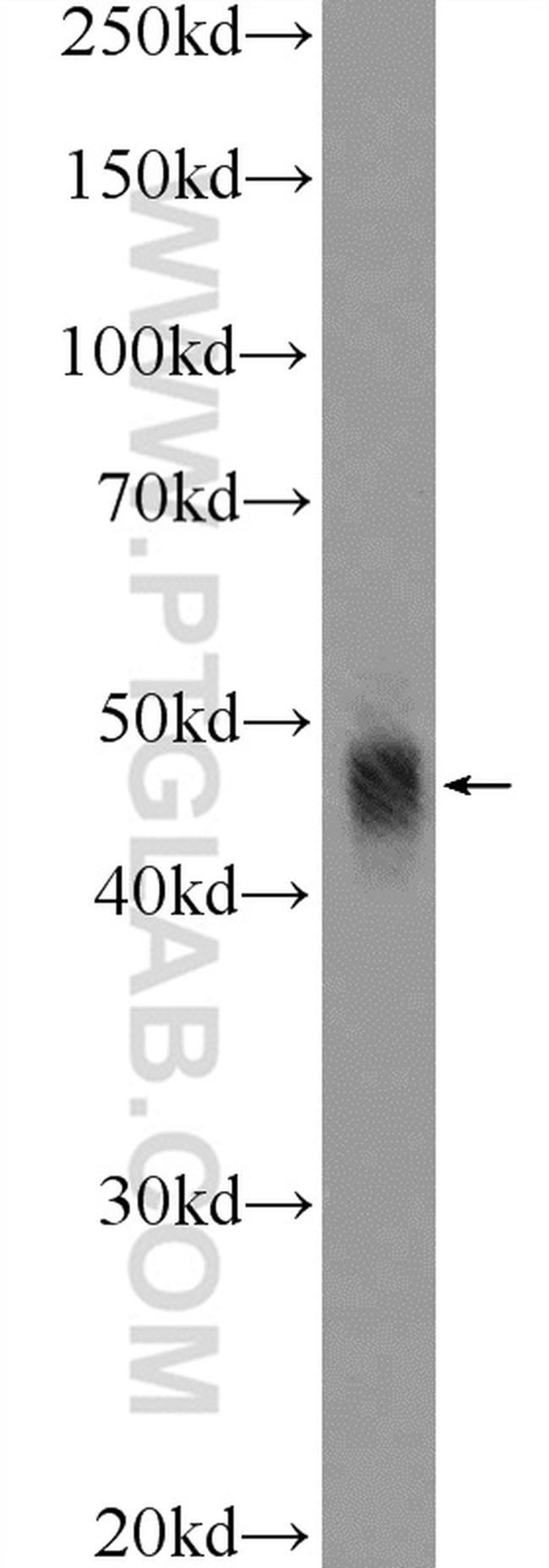 APOBEC3G Antibody in Western Blot (WB)