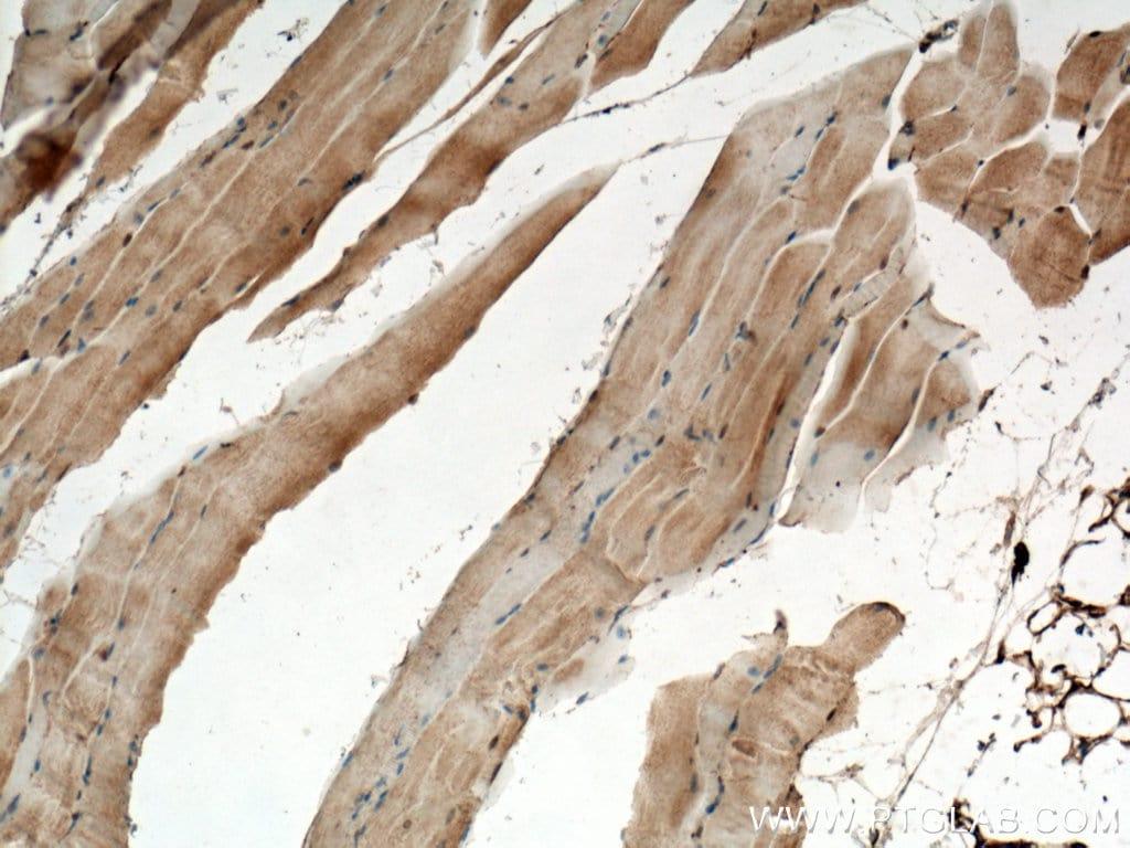 CHRNA1 Antibody in Immunohistochemistry (Paraffin) (IHC (P))
