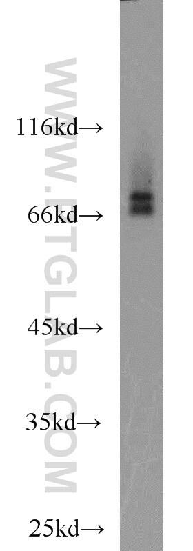 RORA Antibody in Western Blot (WB)