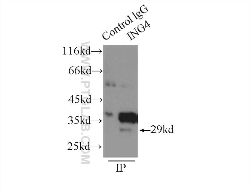 ING4 Antibody in Immunoprecipitation (IP)