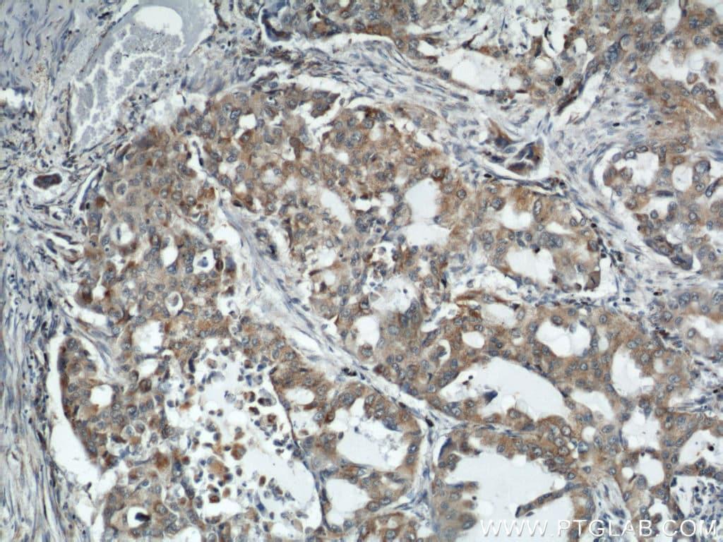 REDD1 Antibody in Immunohistochemistry (Paraffin) (IHC (P))