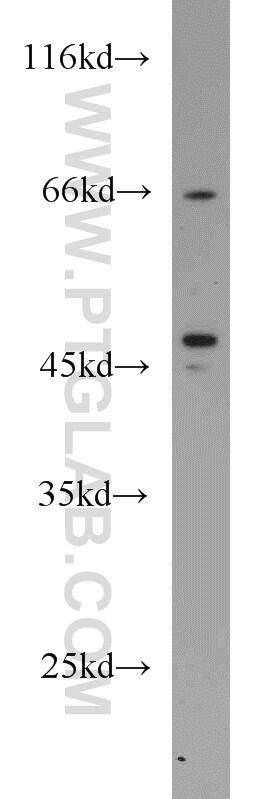 Protein C inhibitor Antibody in Western Blot (WB)