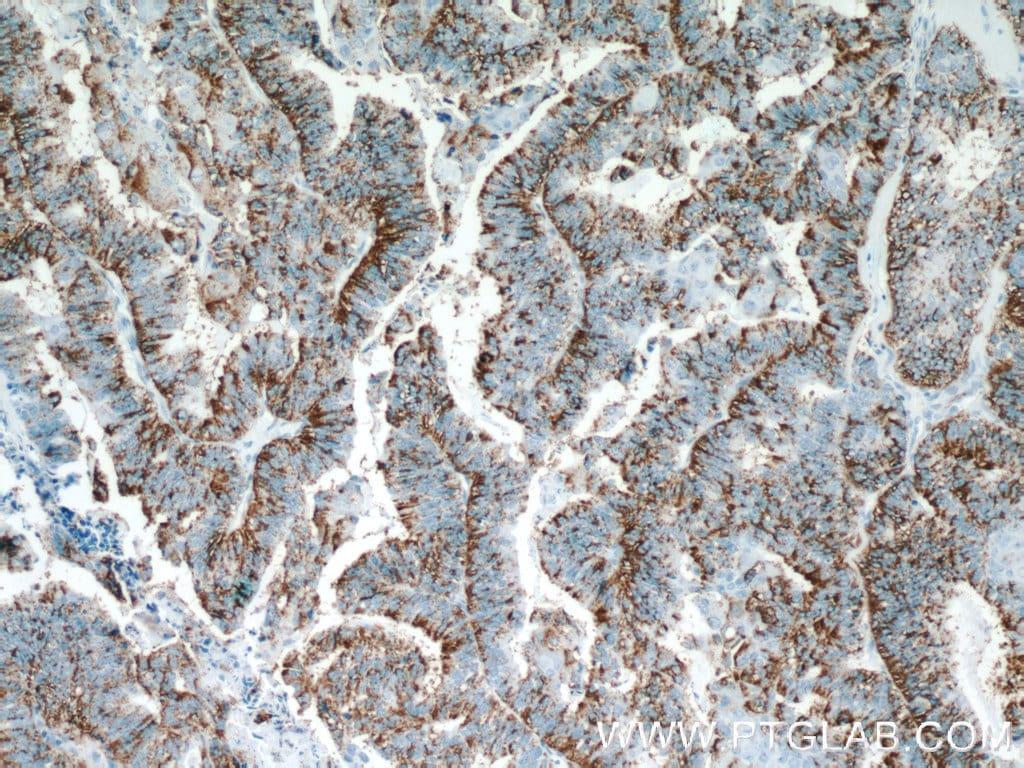 Protein C inhibitor Antibody in Immunohistochemistry (Paraffin) (IHC (P))