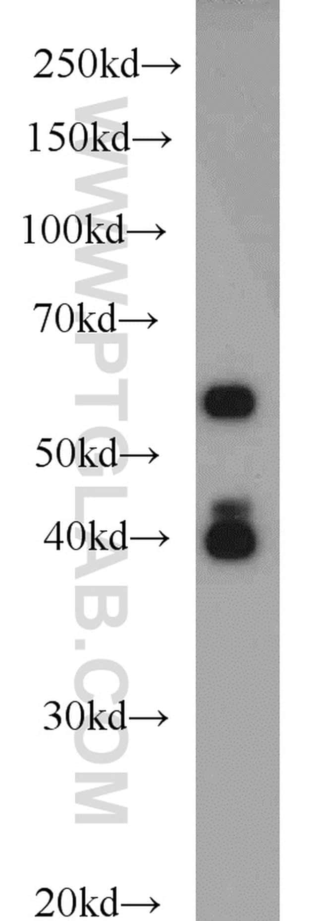 PAIP1 Antibody in Western Blot (WB)