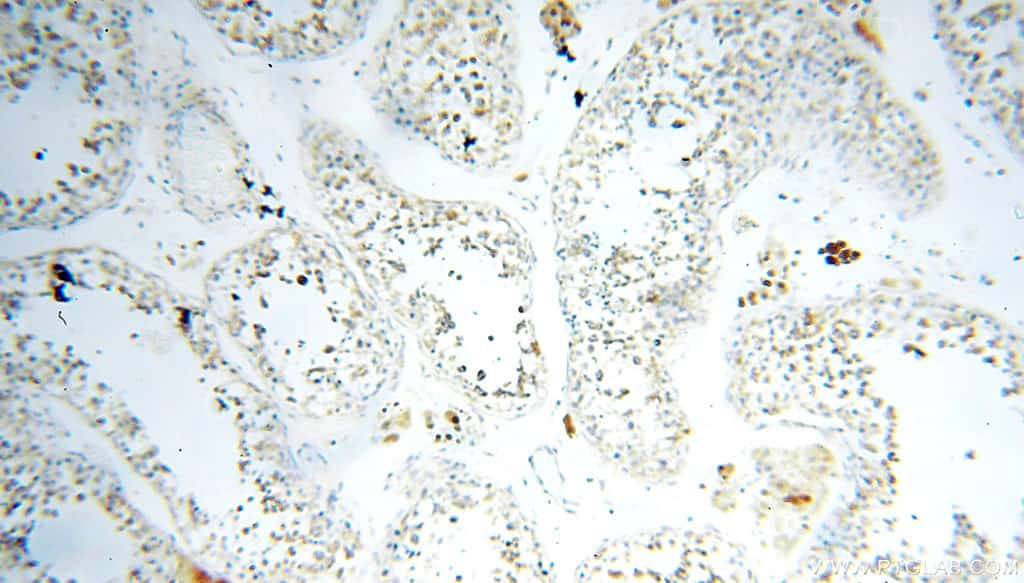 FABP3 Antibody in Immunohistochemistry (Paraffin) (IHC (P))