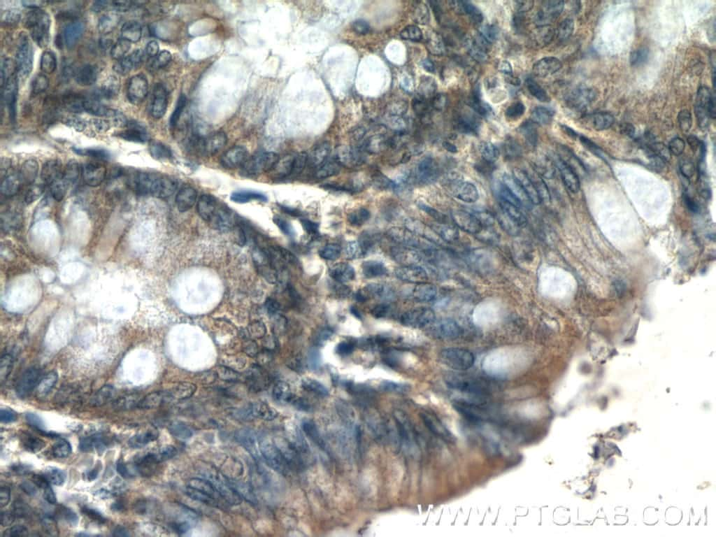 MMS2 Antibody in Immunohistochemistry (Paraffin) (IHC (P))