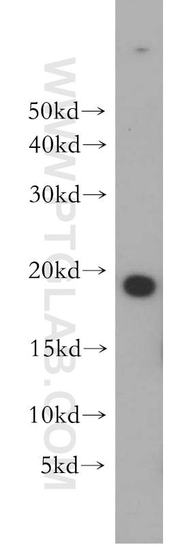 MPHOSPH6 Antibody in Western Blot (WB)