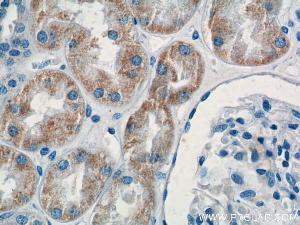 KMO Antibody in Immunohistochemistry (Paraffin) (IHC (P))