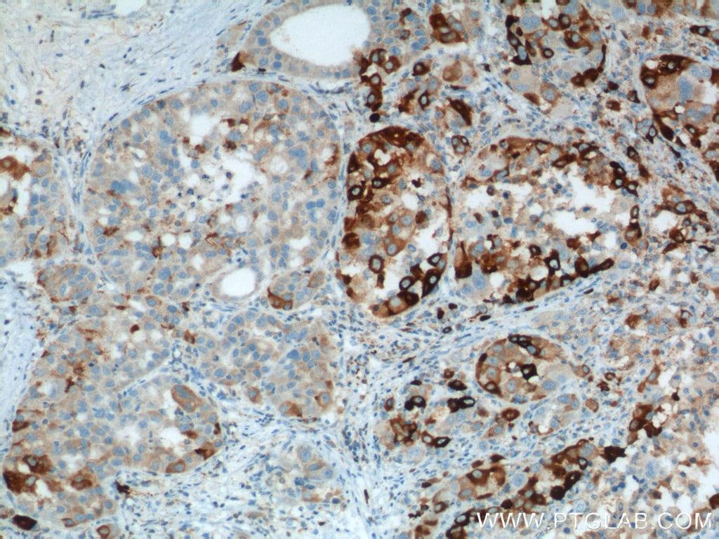 HO-1/HMOX1 Antibody in Immunohistochemistry (Paraffin) (IHC (P))