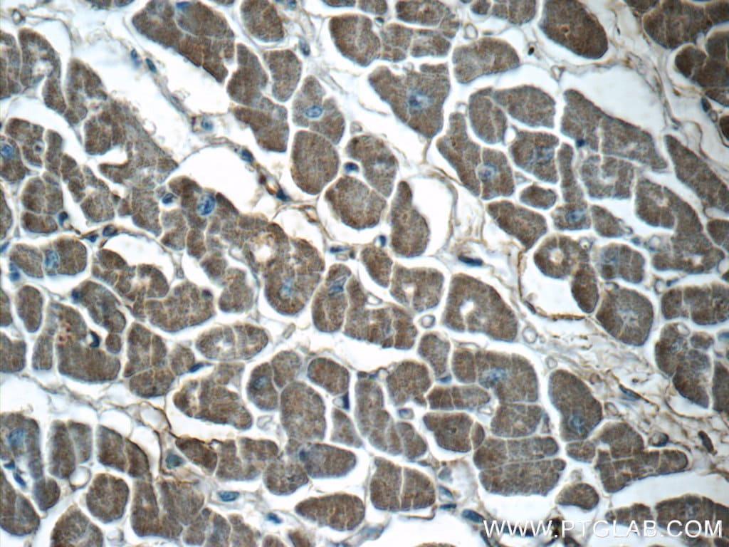 VAMP3/Cellubrevin Antibody in Immunohistochemistry (Paraffin) (IHC (P))