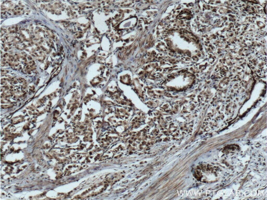 C1D Antibody in Immunohistochemistry (Paraffin) (IHC (P))