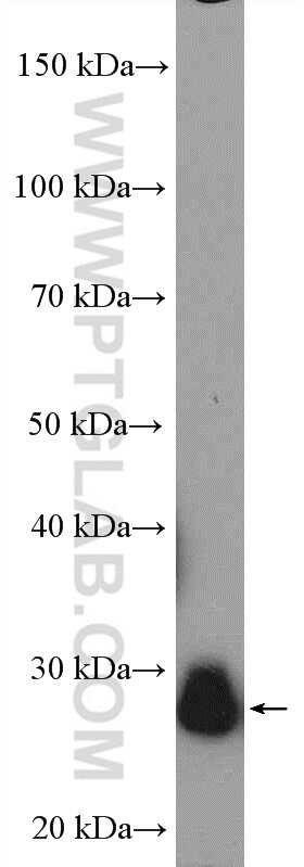TPI1 Antibody in Western Blot (WB)