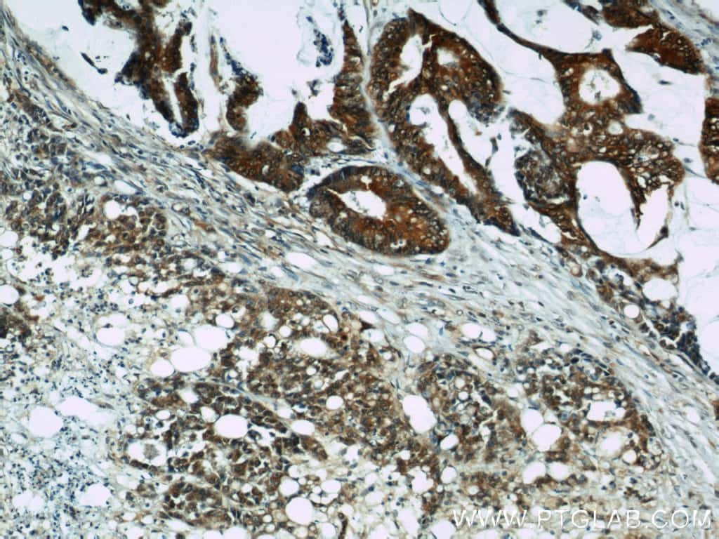 Cyclophilin A Antibody in Immunohistochemistry (Paraffin) (IHC (P))