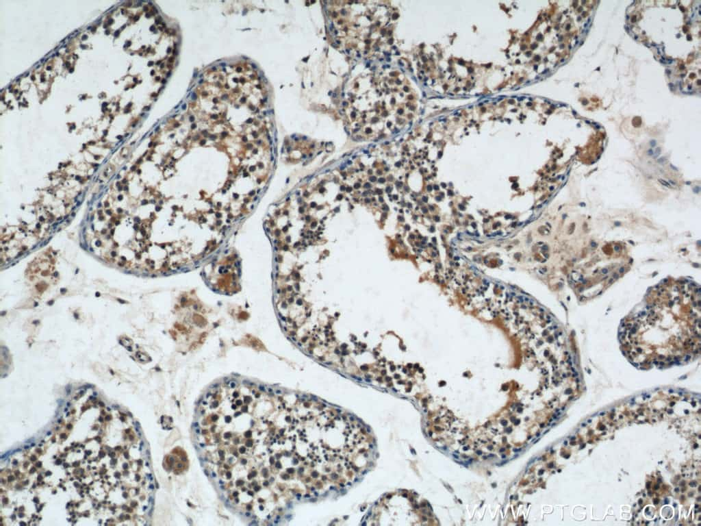 NRAS Antibody in Immunohistochemistry (Paraffin) (IHC (P))