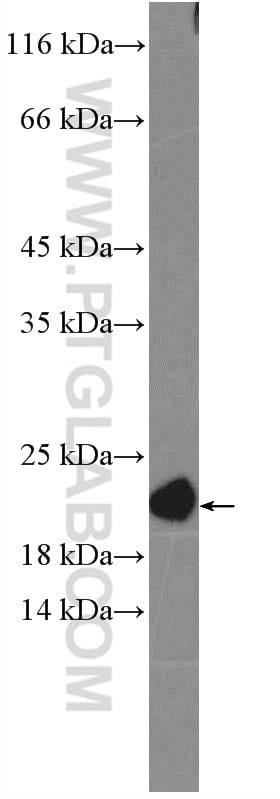 NRAS Antibody in Western Blot (WB)