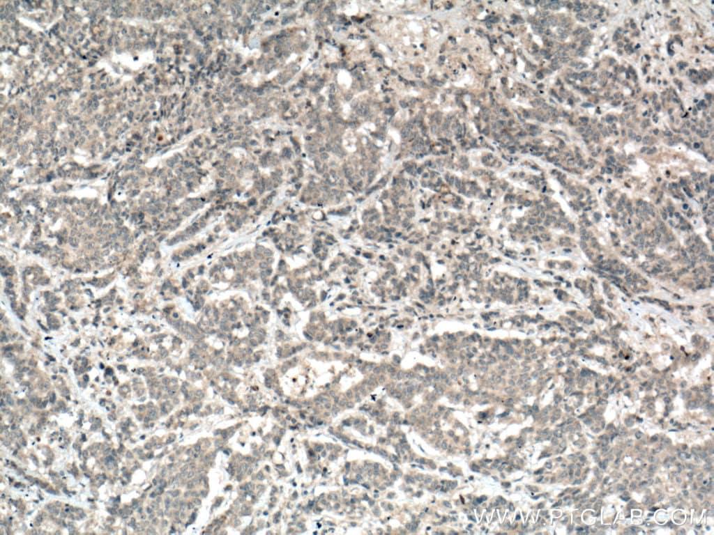 MGP Antibody in Immunohistochemistry (Paraffin) (IHC (P))
