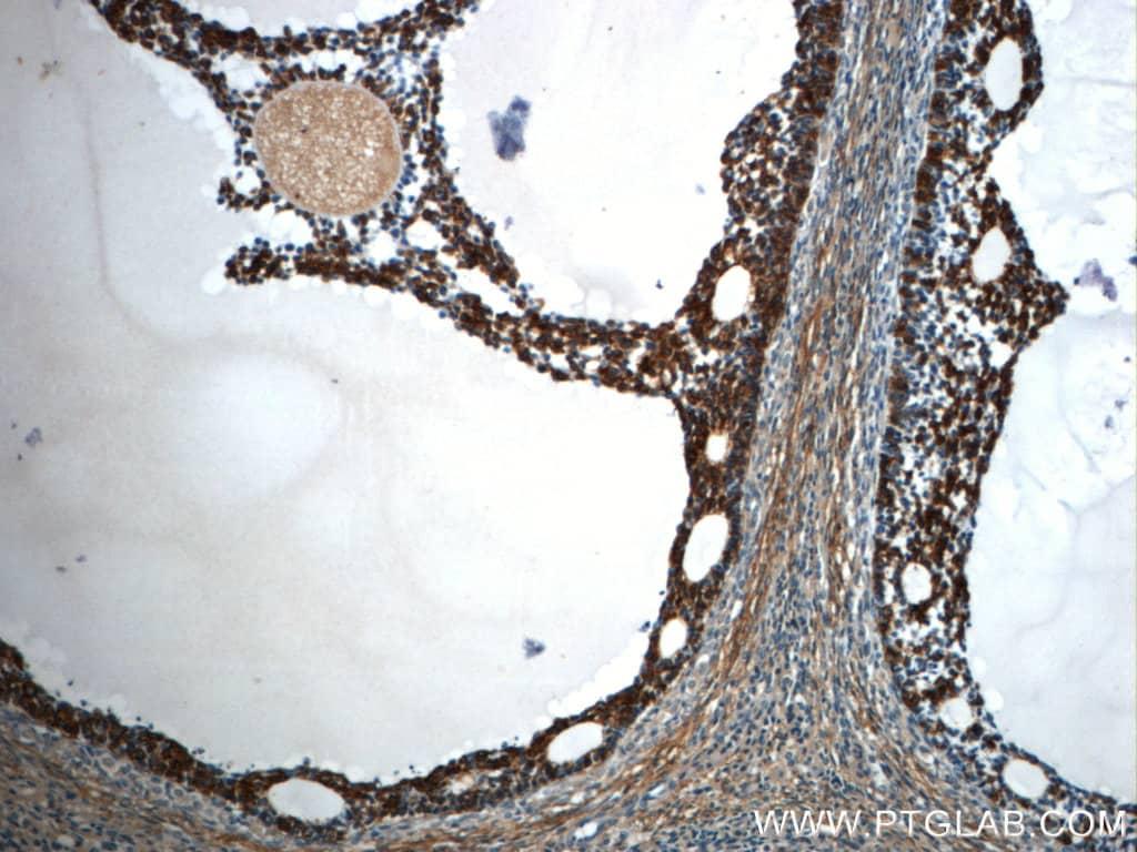 TPM3 Antibody in Immunohistochemistry (Paraffin) (IHC (P))