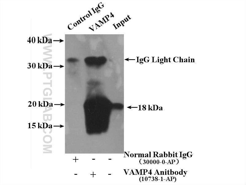 VAMP4 Antibody in Immunoprecipitation (IP)
