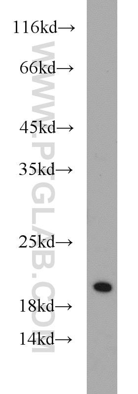 SNX3 Antibody in Western Blot (WB)