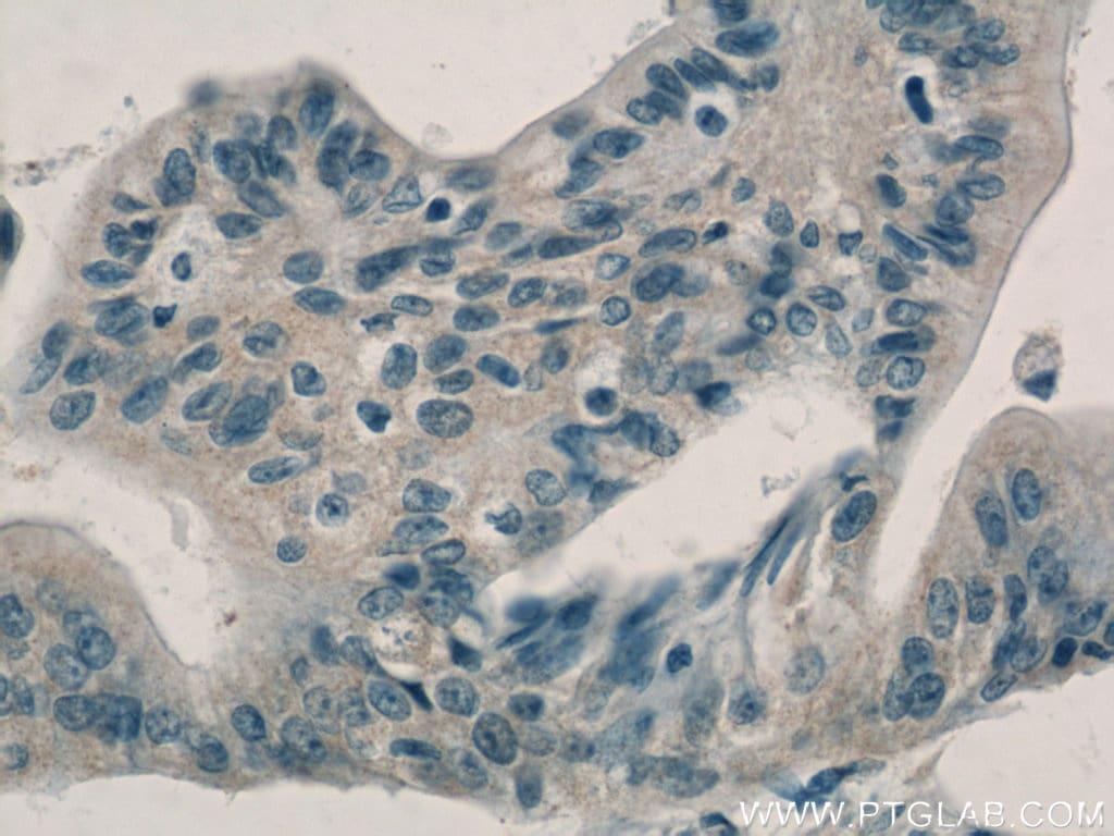 Adrenomedullin Antibody in Immunohistochemistry (Paraffin) (IHC (P))