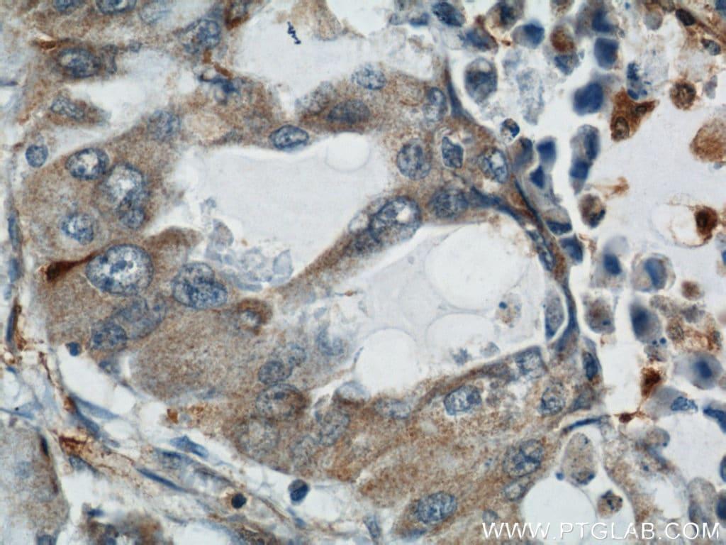 COTL1 Antibody in Immunohistochemistry (Paraffin) (IHC (P))