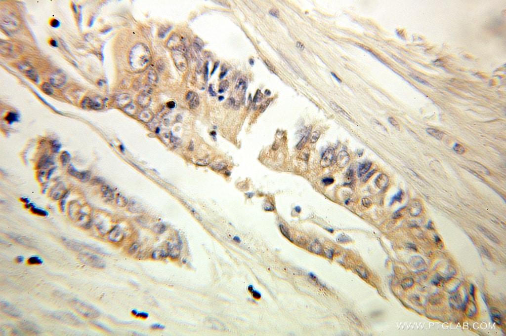 MTHFD1 Antibody in Immunohistochemistry (Paraffin) (IHC (P))