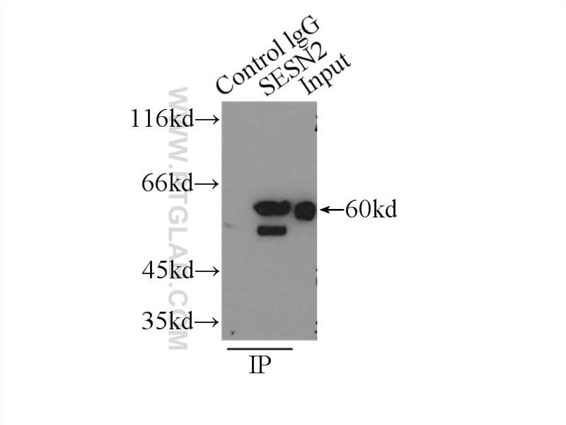 Sestrin 2 Antibody in Immunoprecipitation (IP)