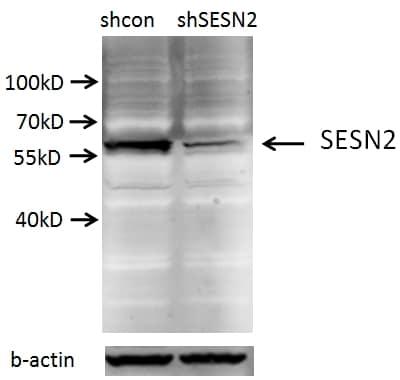 Sestrin 2 Antibody in Western Blot (WB)