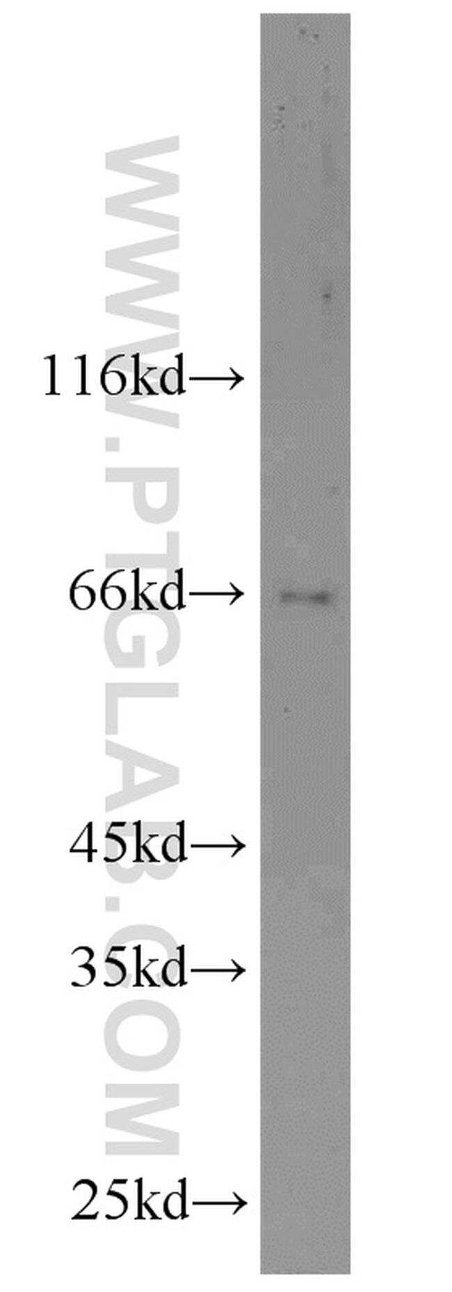 DDX5/p68 Antibody in Western Blot (WB)
