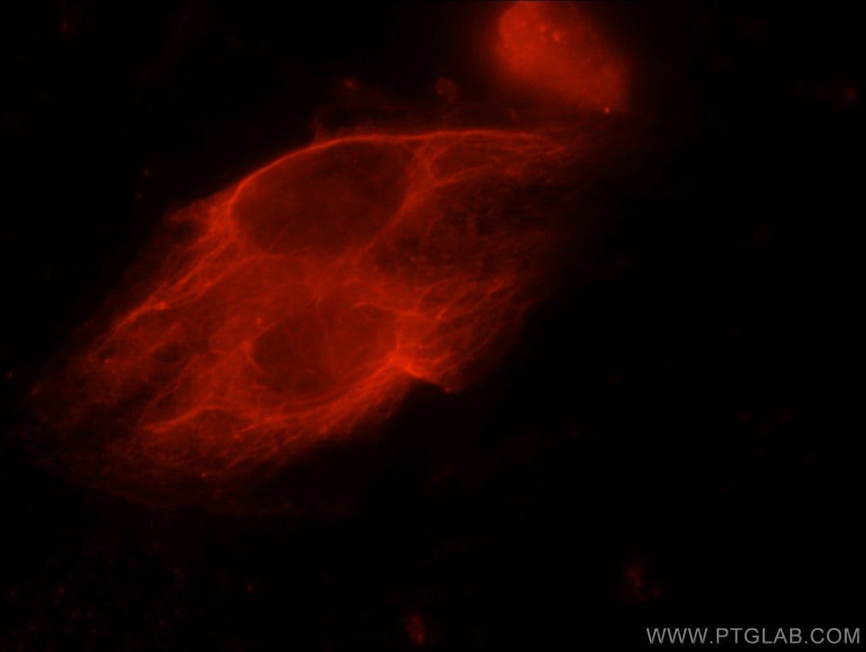 Cystatin B Antibody in Immunofluorescence (IF)