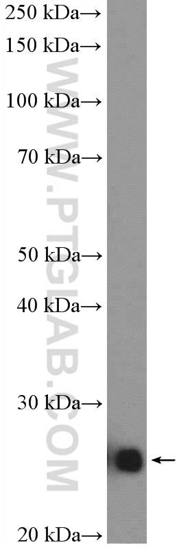 SNAP23 Antibody in Western Blot (WB)