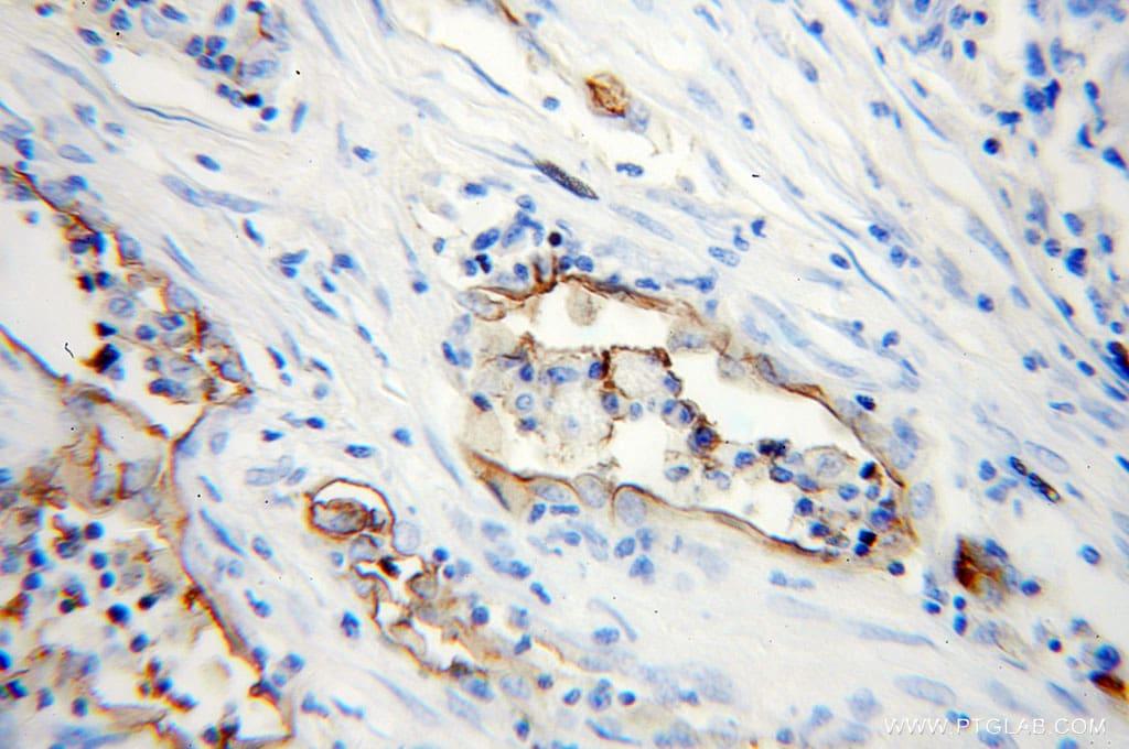 ICAM-1 Antibody in Immunohistochemistry (Paraffin) (IHC (P))