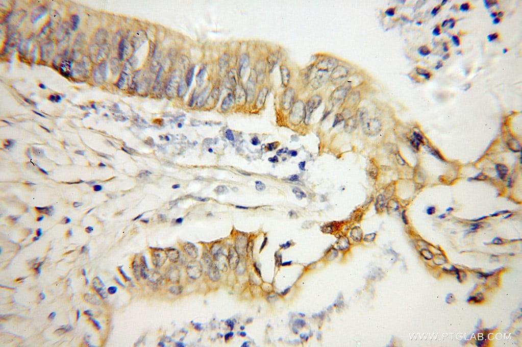 OPTN Antibody in Immunohistochemistry (Paraffin) (IHC (P))