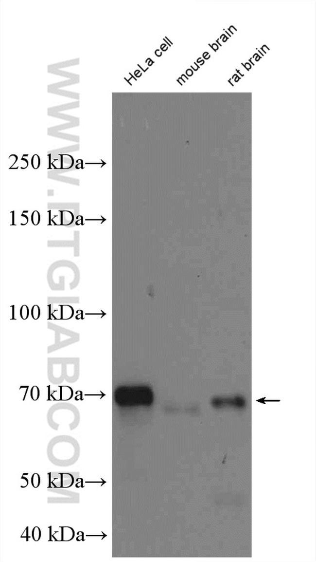 OPTN Antibody in Western Blot (WB)