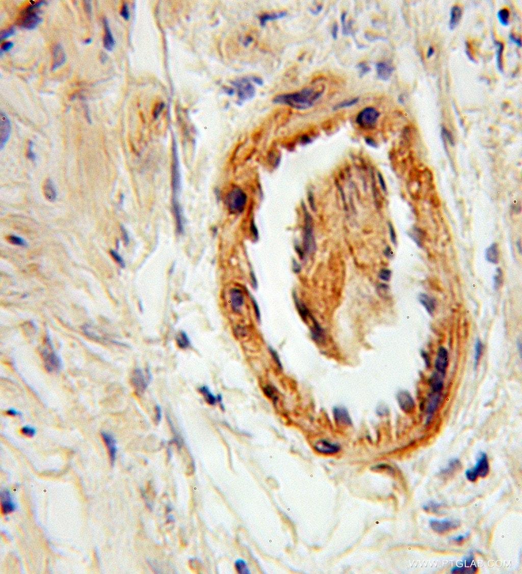 Syntaxin 6 Antibody in Immunohistochemistry (Paraffin) (IHC (P))