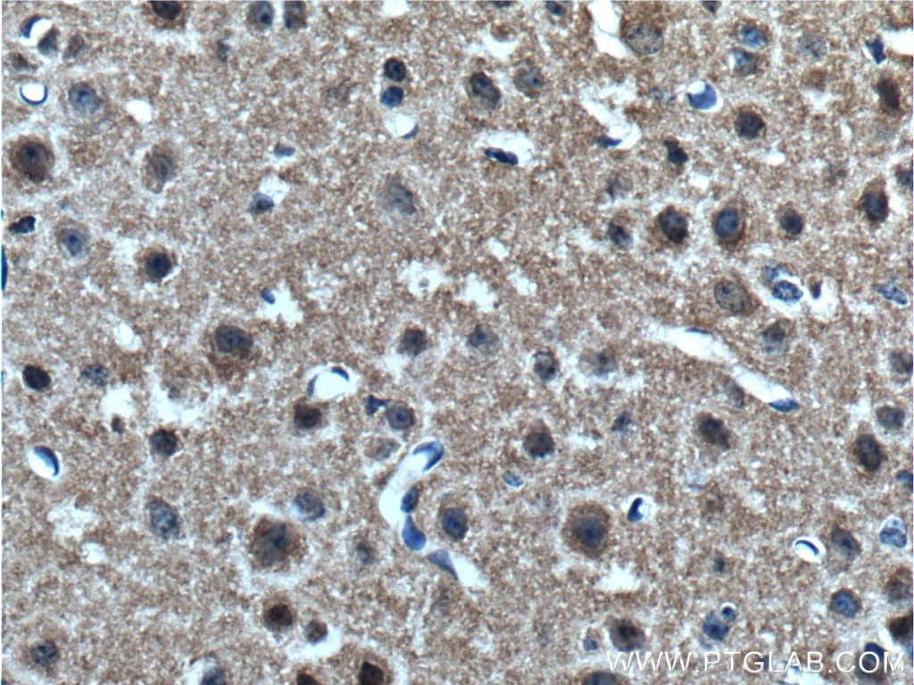 alpha-synuclein Antibody in Immunohistochemistry (Paraffin) (IHC (P))