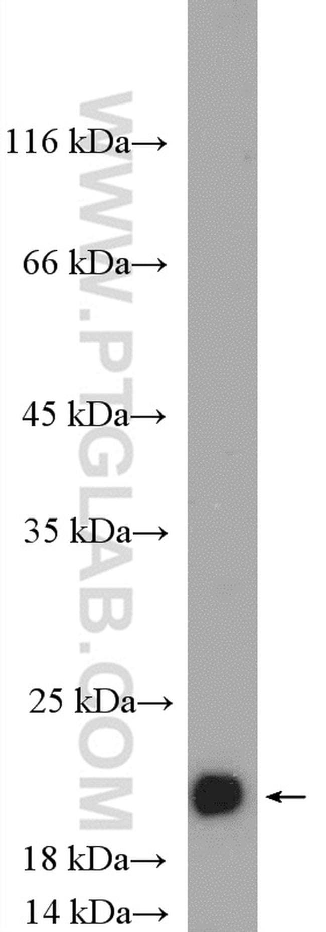 alpha-synuclein Antibody in Western Blot (WB)