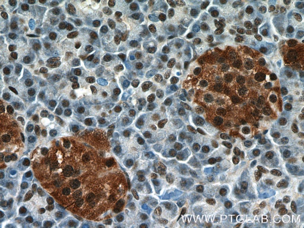 ANP32B Antibody in Immunohistochemistry (Paraffin) (IHC (P))