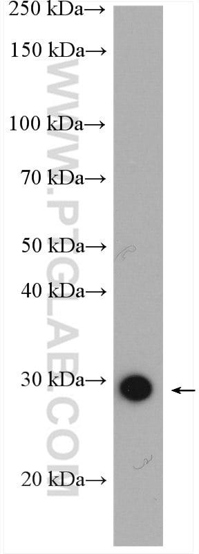 ANP32B Antibody in Western Blot (WB)