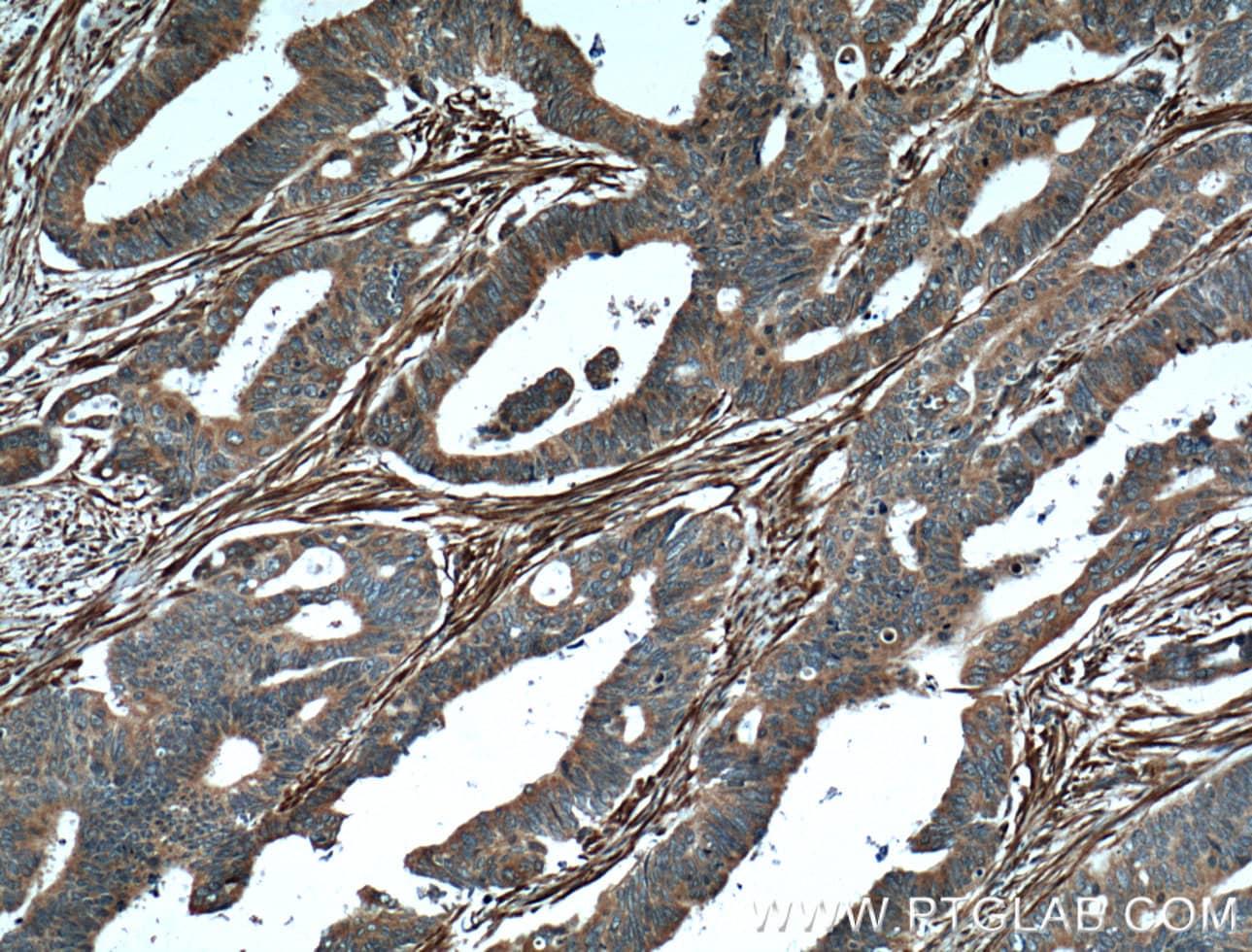 Palladin Antibody in Immunohistochemistry (Paraffin) (IHC (P))