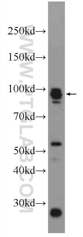Palladin Antibody in Western Blot (WB)
