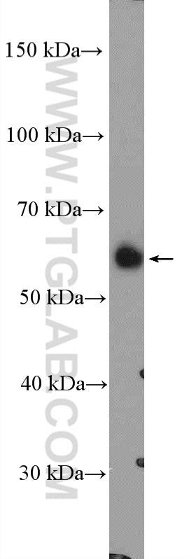 LYPLA3 Antibody in Western Blot (WB)