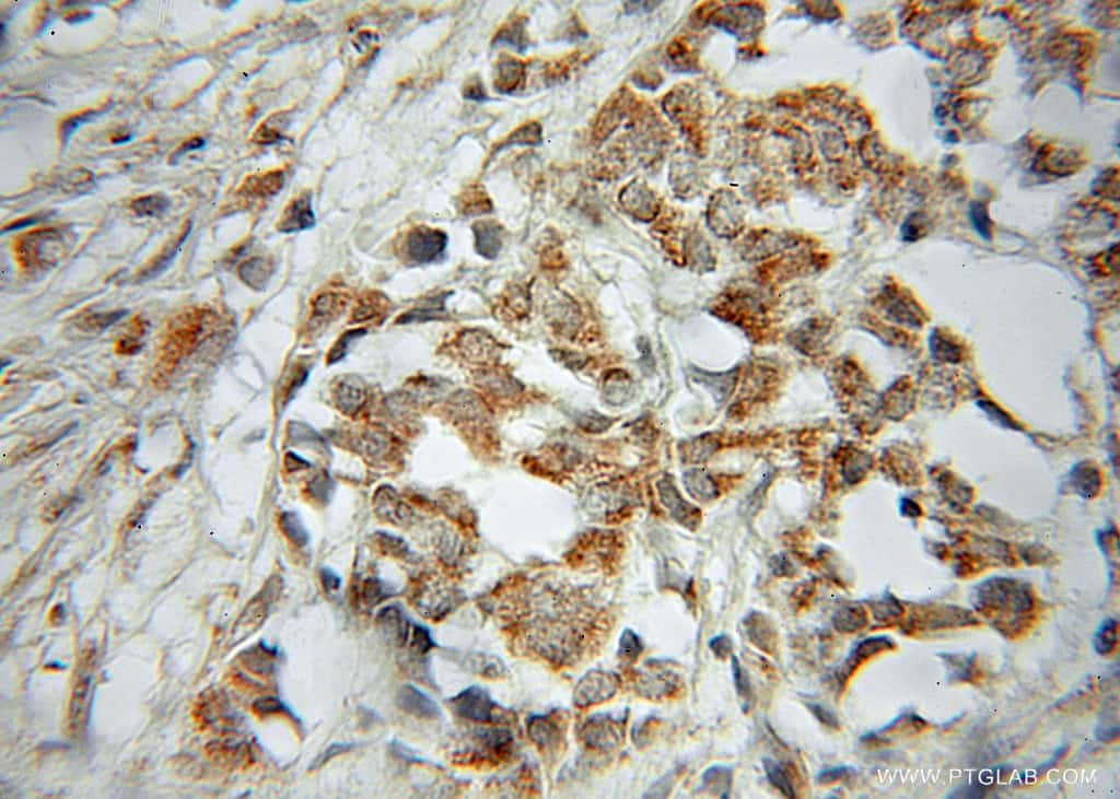PTGES2 Antibody in Immunohistochemistry (Paraffin) (IHC (P))
