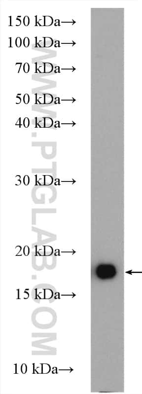 P16-INK4A Antibody in Western Blot (WB)