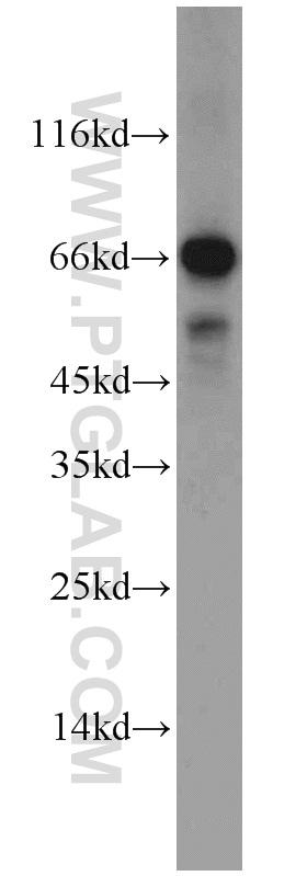 Syndecan-3 Antibody in Western Blot (WB)