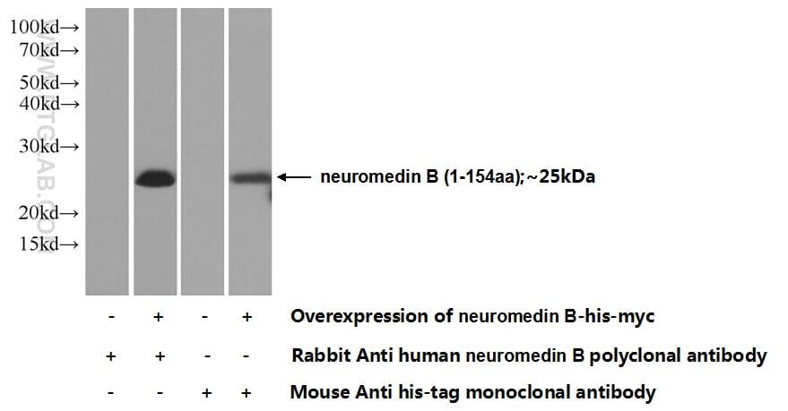 neuromedin B Antibody in Western Blot (WB)