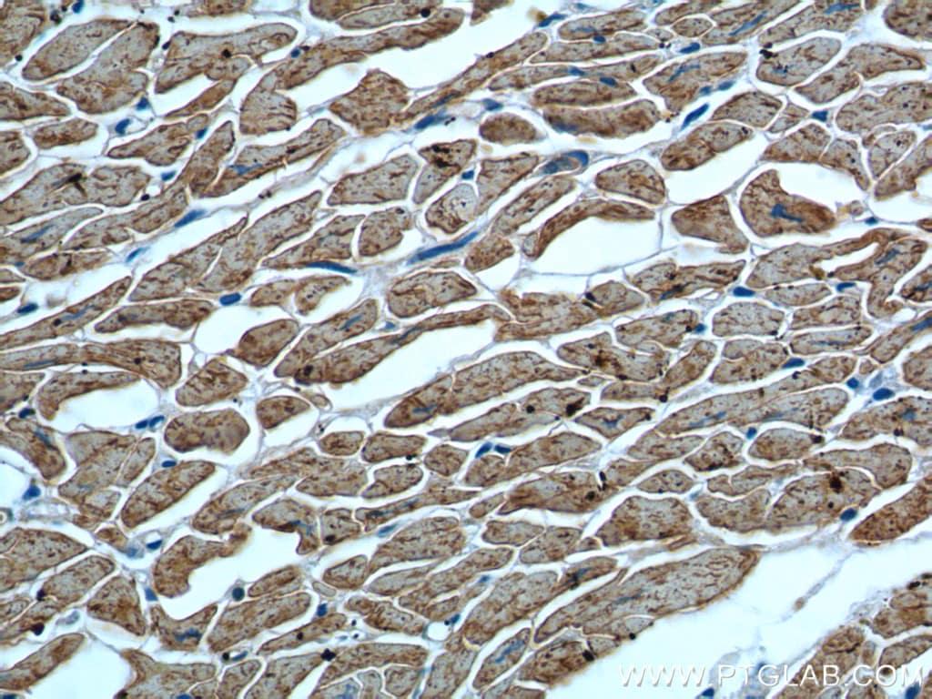 Myosin Light Chain 2 Antibody in Immunohistochemistry (Paraffin) (IHC (P))