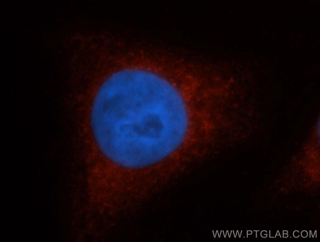 SULT1A1 Antibody in Immunofluorescence (IF)