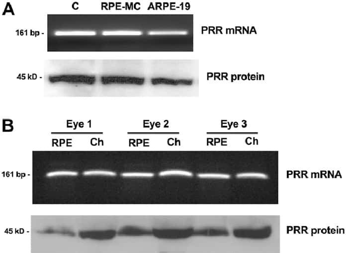 Renin receptor/ATP6AP2 Antibody in Western Blot (WB)